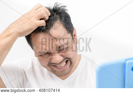 A Middle-aged Man Scratch His Hair On The Scalp Isolated On White Background .itchy Head Problem And
