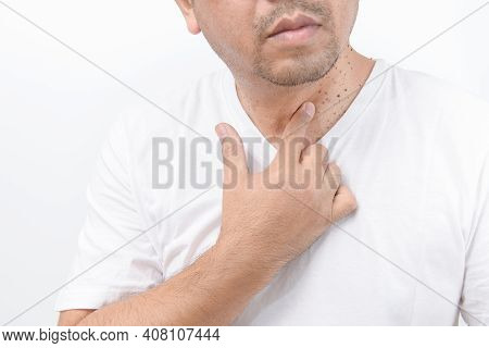 Man Point To Skin Tags Or Acrochordon On Neck Man On White Background. Health Care Concept