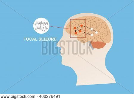 Illustration Of Abnormal Eletrical Activity In Region Of Human Brain Causing Focal Seizure Or Epilep