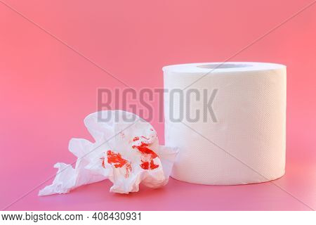 Toilet Paper And Blood. Concept Of Hemorrhoid Treatment.