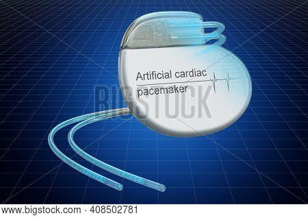 Visualization 3d Cad Model Of Artificial Cardiac Pacemaker, Blueprint. 3d Rendering