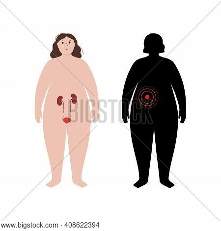 Pain, Inflammation In Kidney. Mellitus Diabetes, Dialysis. Adult Obese Woman Anatomy Poster. Ache In