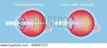 Cataracts And Healthy Eye Detailed Structure On Blue.