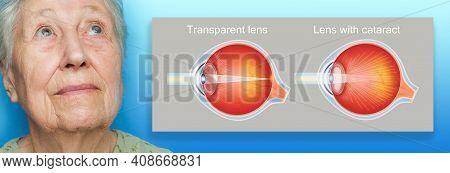 Cataract Concept. Senior Woman's Eye, Closeup