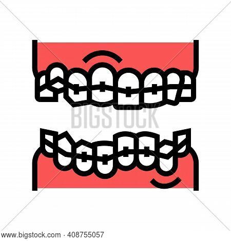 Correction Tooth Braces Color Icon Vector. Correction Tooth Braces Sign. Isolated Symbol Illustratio