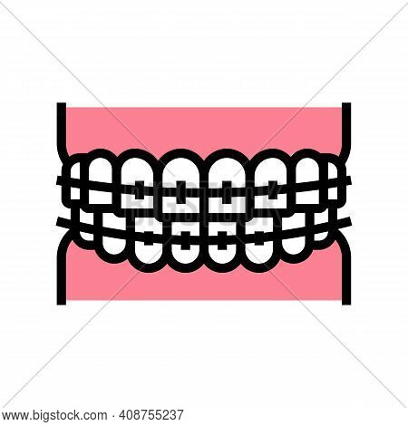 Tooth Braces Color Icon Vector. Tooth Braces Sign. Isolated Symbol Illustration