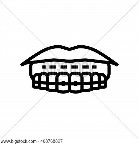Sticking To Lips Tooth Braces Line Icon Vector. Sticking To Lips Tooth Braces Sign. Isolated Contour