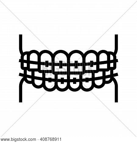 Tooth Braces Line Icon Vector. Tooth Braces Sign. Isolated Contour Symbol Black Illustration