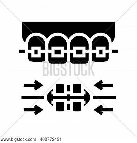 Work Process Tooth Braces Glyph Icon Vector. Work Process Tooth Braces Sign. Isolated Contour Symbol