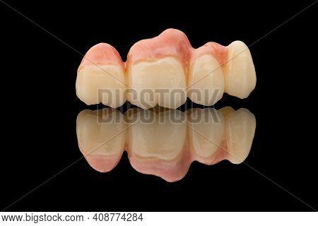 Dental Bridge Of 4 Teeth On Artificial Gums. Close-up Photo Of Ceramic Teeth Crown Isolated On Black