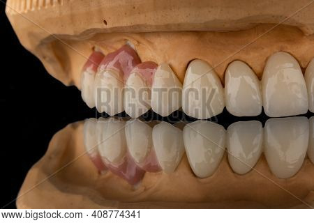 Close-up Photo Of A Dental Upper Jaw Prosthesis On Black Glass Background. Artificial Jaw With Venee