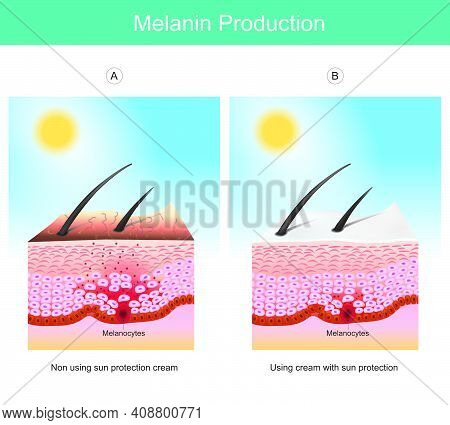 Melanin Production. Illustration Showing Colour Human Skin Affect From Uv Rays The Cause Of Stimulat