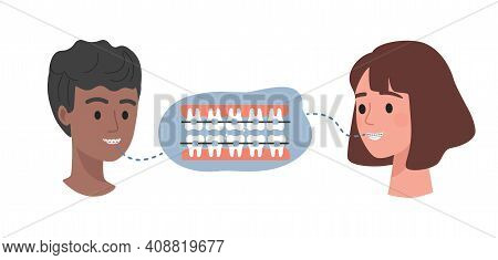 Dental Braces On Teeth Vector Flat Illustration. Male And Female Heads And Teeth With Orthodontic Br