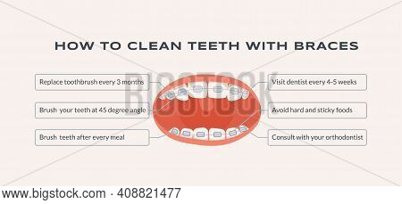 How To Clean Teeth With Braces Vector Flat Information Banner Template With Text Space. Mouth With D