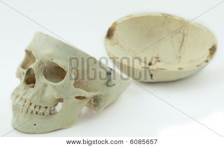 Skull with Dome Removed - Isolated