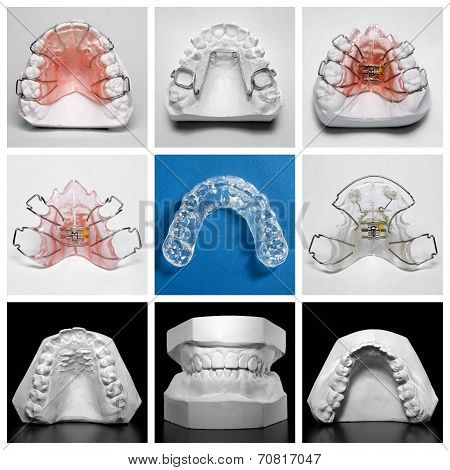 Essix retainer surrounded by orthodontic appliances and study models