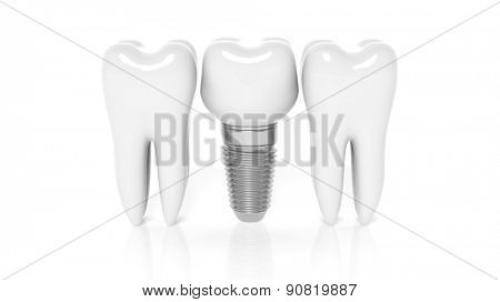 Row of teeth with dental implant isolated on white background