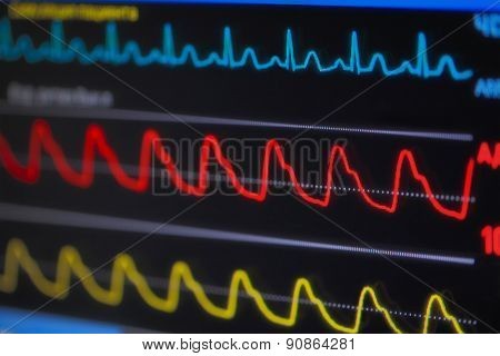 Waves Ecg On Monitor In Perspective