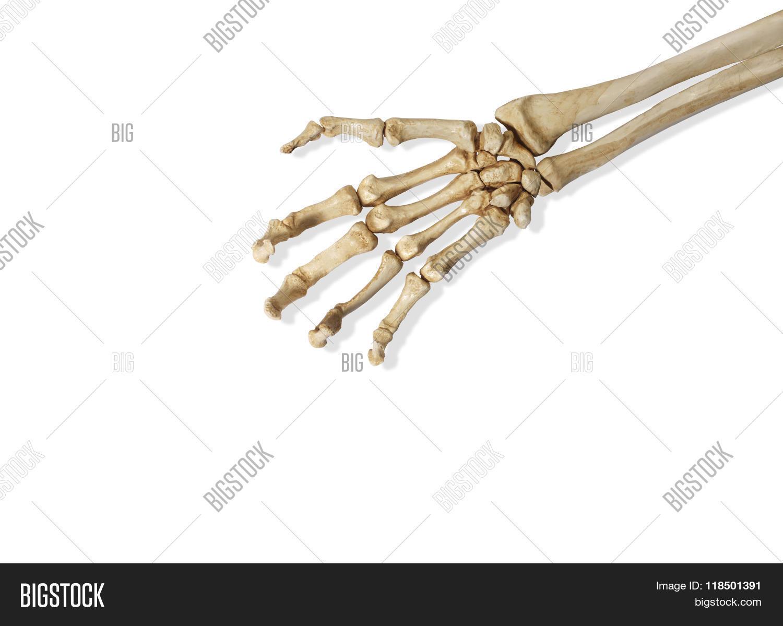 Skeleton Arm Hand Image Photo Free Trial Bigstock