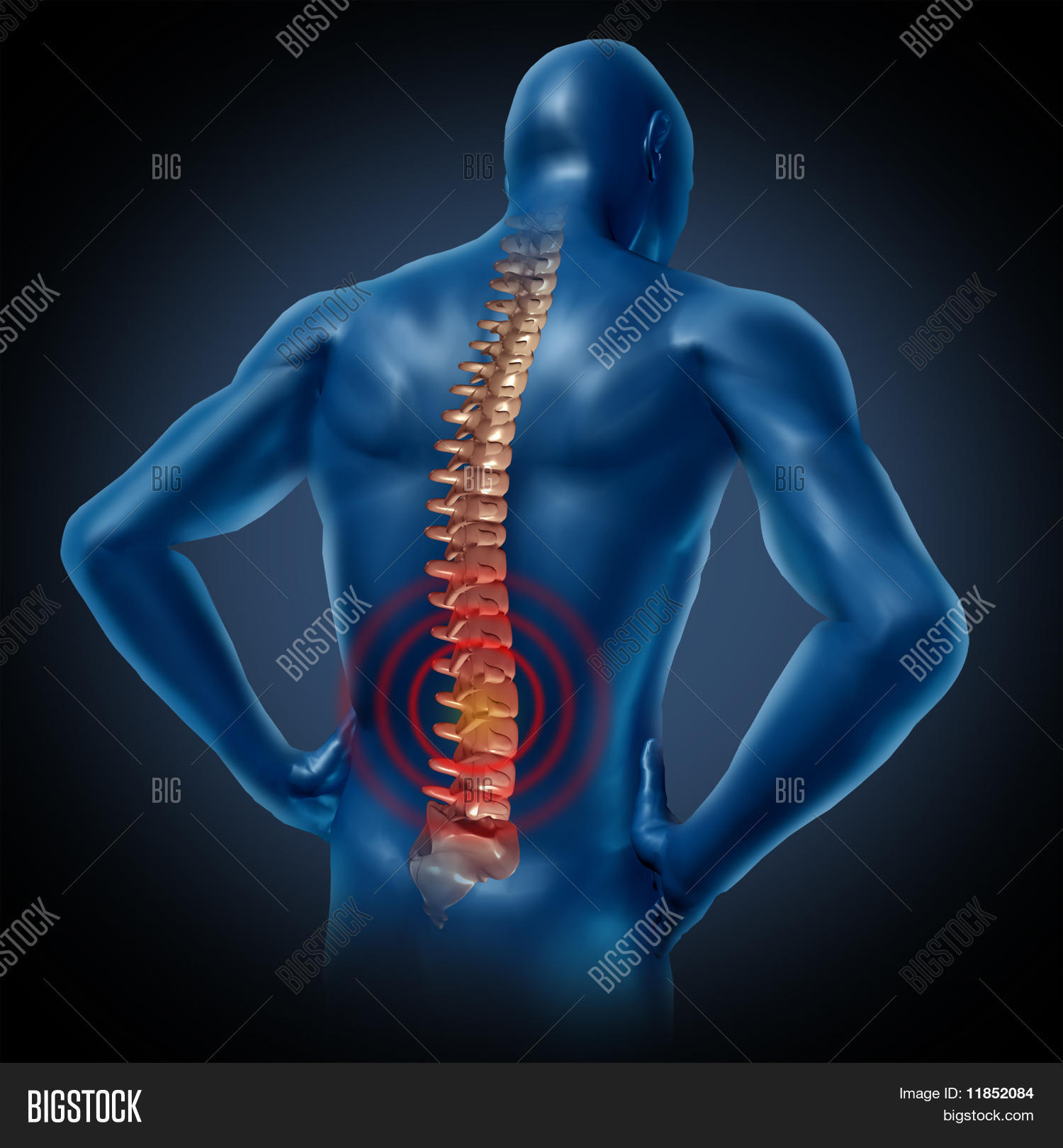 Human Back Pain Spinal Image Photo Free Trial Bigstock