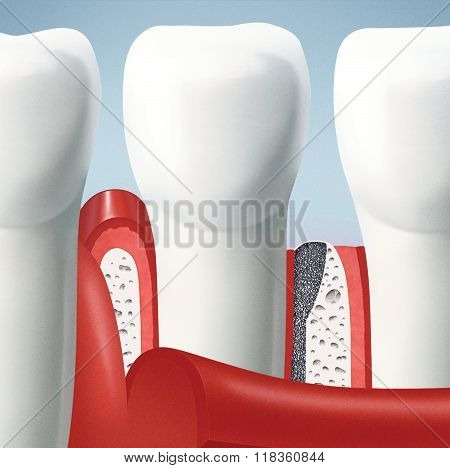gingival incision allows to form a gingival flap and fold gums