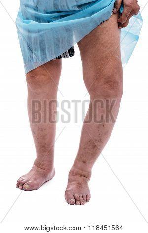 Man With A Diagnosis Of Polyarthritis .