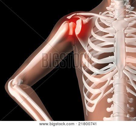 3D render of a female medical skeleton with shoulder pain