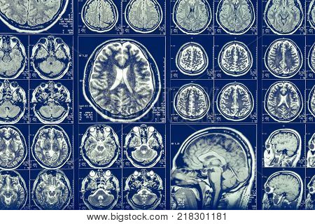 Brain scan X-ray Mri or Magnetic resonance imaging of human head, neurology concept, toned