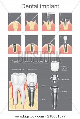 Dental implant is an artificial tooth root that is placed into your jaw to hold a replacement tooth or bridge. Dental implants may be an option for people who have lost a tooth or teeth due to periodontal disease an injury or some other reason. Vector gra