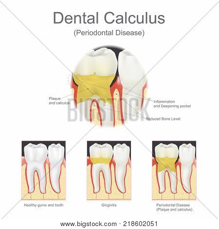Dental calculus is the calcified plaque or tartar that is removed with a dental scalar during regular dentist visits. graphic.