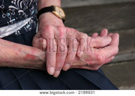 Extreme sceriosis skin disease on the hands of an elderly female. poster