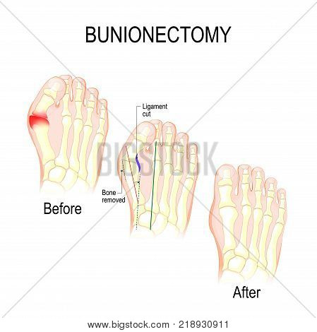 Bunionectomy is a procedure to correct of pathologies and deformity of the joint connecting the big toe to the foot. Before and after of Surgery. Healthy foot and foot with Bunion. Human anatomy. Skeleton