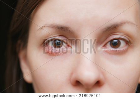 Close Up Photo Of Young Caucasian Brunette Woman Barley Brown Eye Infection, Eyelid Abscess, Stye, H