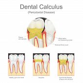 Dental calculus is the calcified plaque or tartar that is removed with a dental scalar during regular dentist visits. graphic. poster