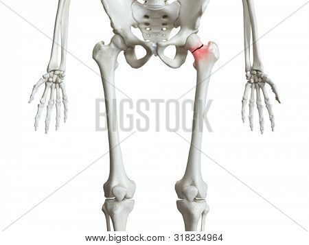 3d rendered medically accurate illustration of a broken femur neck