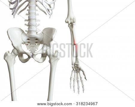 3d rendered medically accurate illustration of a broken radius