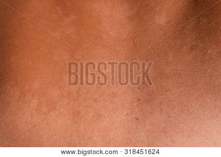 Sunburn on the skin of the back. Exfoliation, skin peels off. Dangerous sun tan. poster