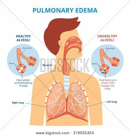 Pulmonary Edema - Respiratory Lung Disease Infographic With Flat Cartoon Man Drawing Showing His Int