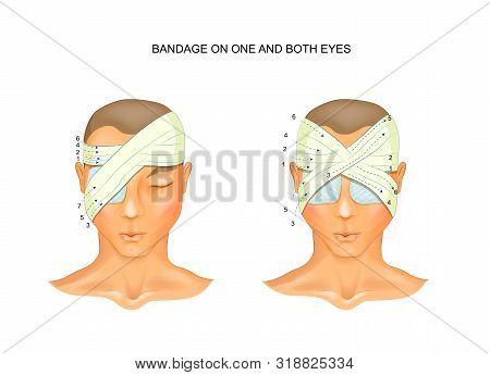 Vector Illustration Of The Bandage On One And Both Eyes