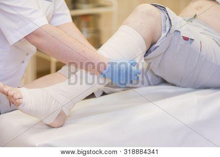 Nurse Bandages The Leg. Fracture Of Human Lower Limbs. Treatment Of Broken Bones. Impose A Gypsum. P