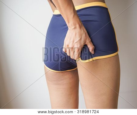Woman Buttocks With Cellulite, Orange Peel, Checking Cellulite.