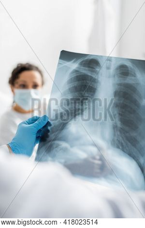 Radiologist In Latex Glove Holding Lungs X-ray Near African American Woman In Medical Mask On Blurre