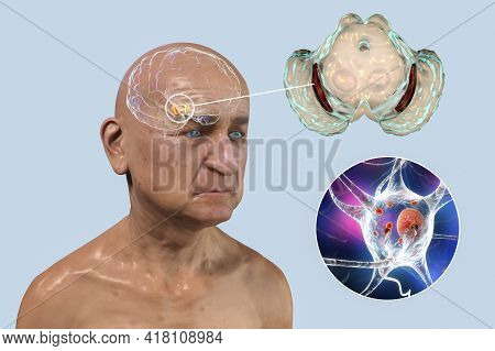 An Old Man With Parkinsons Disease And Highlighted Black Substance Of The Midbrain. 3d Illustration