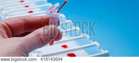 Application of biological preparation on the slide