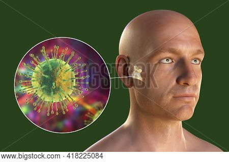Viral Otitis Media, A Group Of Inflammatory Diseases Of The Middle Ear, 3d Illustration Showing A Pe
