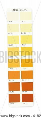 Urine Colors. Color Stripe With Index From Clear Urine To Yellow And Orange And Even Darker. Indicat