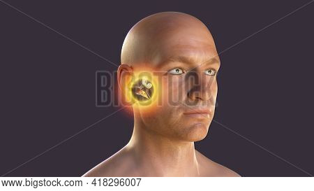 Otitis Media, A Group Of Inflammatory Diseases Of The Middle Ear, 3d Illustration Showing A Male Per