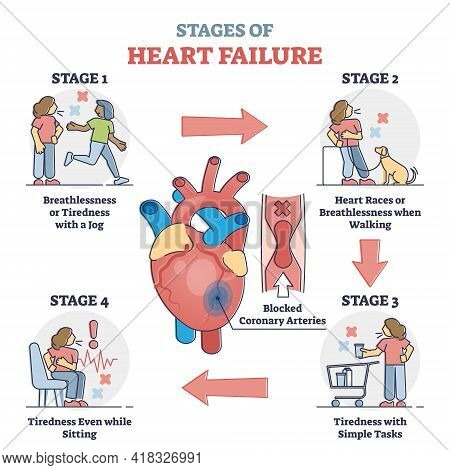 Stages Of Heart Failure And Symptoms With Cardiology Stroke Outline Diagram. Educational Labeled Gui