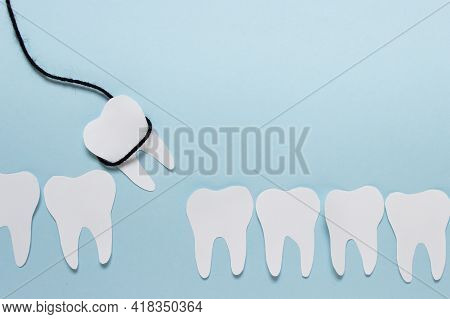 Simple Dental Tooth Extraction Concept Made Of Paper And Black Rope On Blue Background. Photo With C