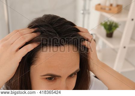 Mature Woman Suffering From Baldness At Home, Closeup